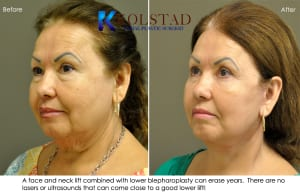 face lift results san diego 3