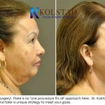 face lift results san diego 4