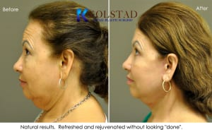 face lift results san diego 5