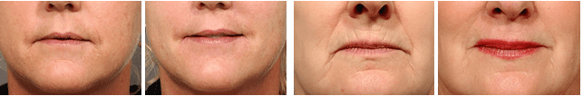 lipstick line treatment