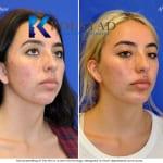 acne-scar-treatment-san-diego-10