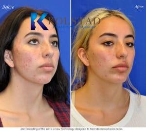 acne scar treatment san diego 17