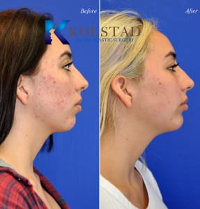 acne scar treatment san diego 18