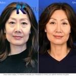 asian nose surgery san diego