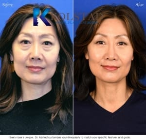 asian nose surgery san diego