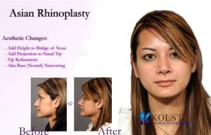 asian rhinoplasty