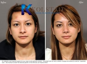 asian rhinoplasty san diego 600 copy