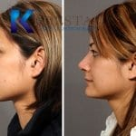 asian rhinoplasty san diego 603 copy
