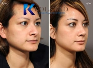 asian rhinoplasty san diego 604 copy