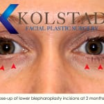 belpharoplasty scars