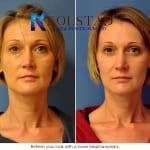 blepharoplasty san diego 80