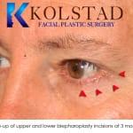 blepharoplasty scar 1