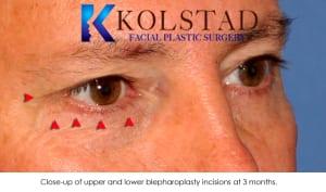 blepharoplasty scar 2