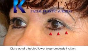 blepharoplasty scar 3