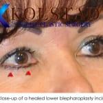 blepharoplasty scar 4