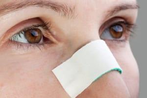 blog-nose-job