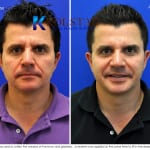 botox and juvederm 1 copy