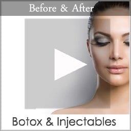 botox copy 1