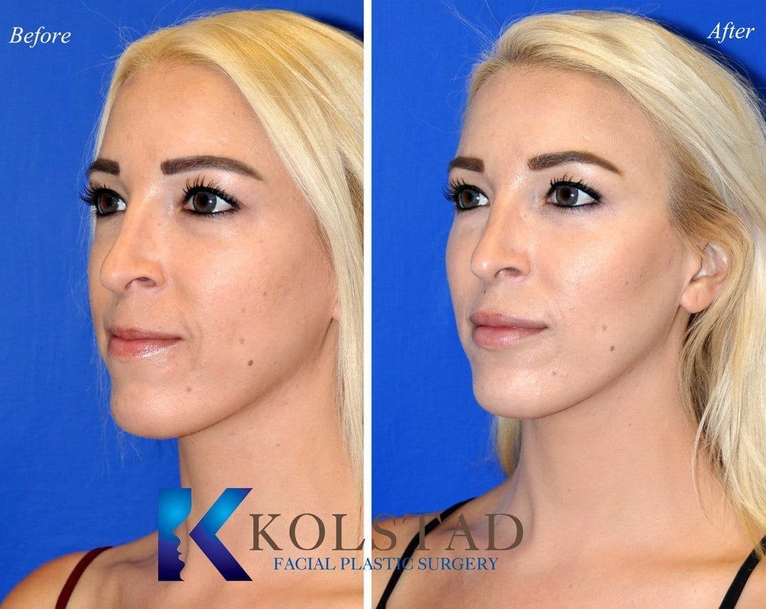 cheek-augmentation-san-diego-50-copy