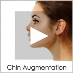 Chin Augmentation San Diego