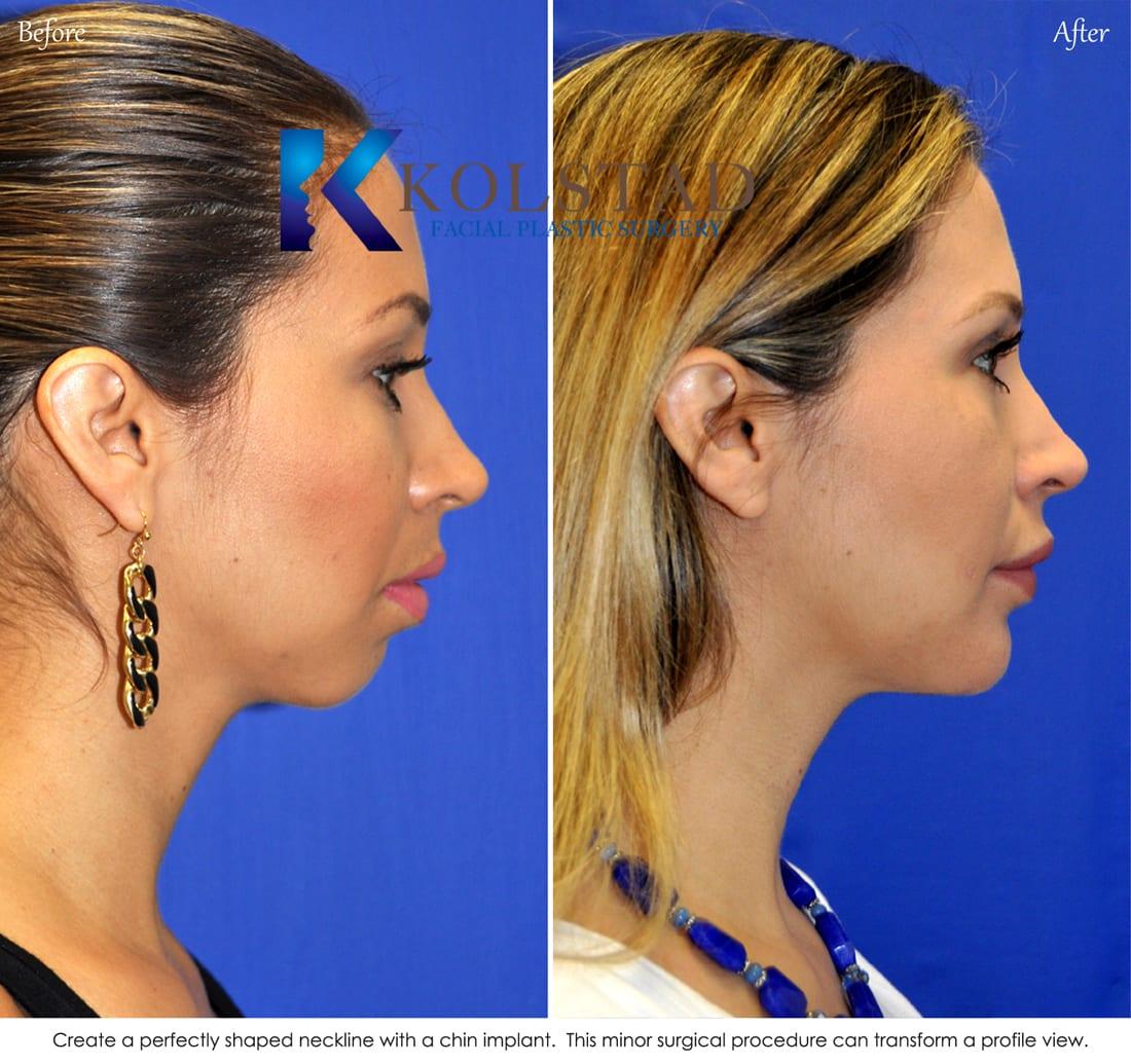 Chin Augmentation San Diego 305 Copy Dr Kolstad San