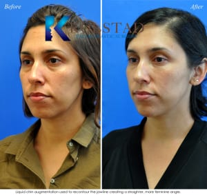 chin augmentation san diego 32 copy