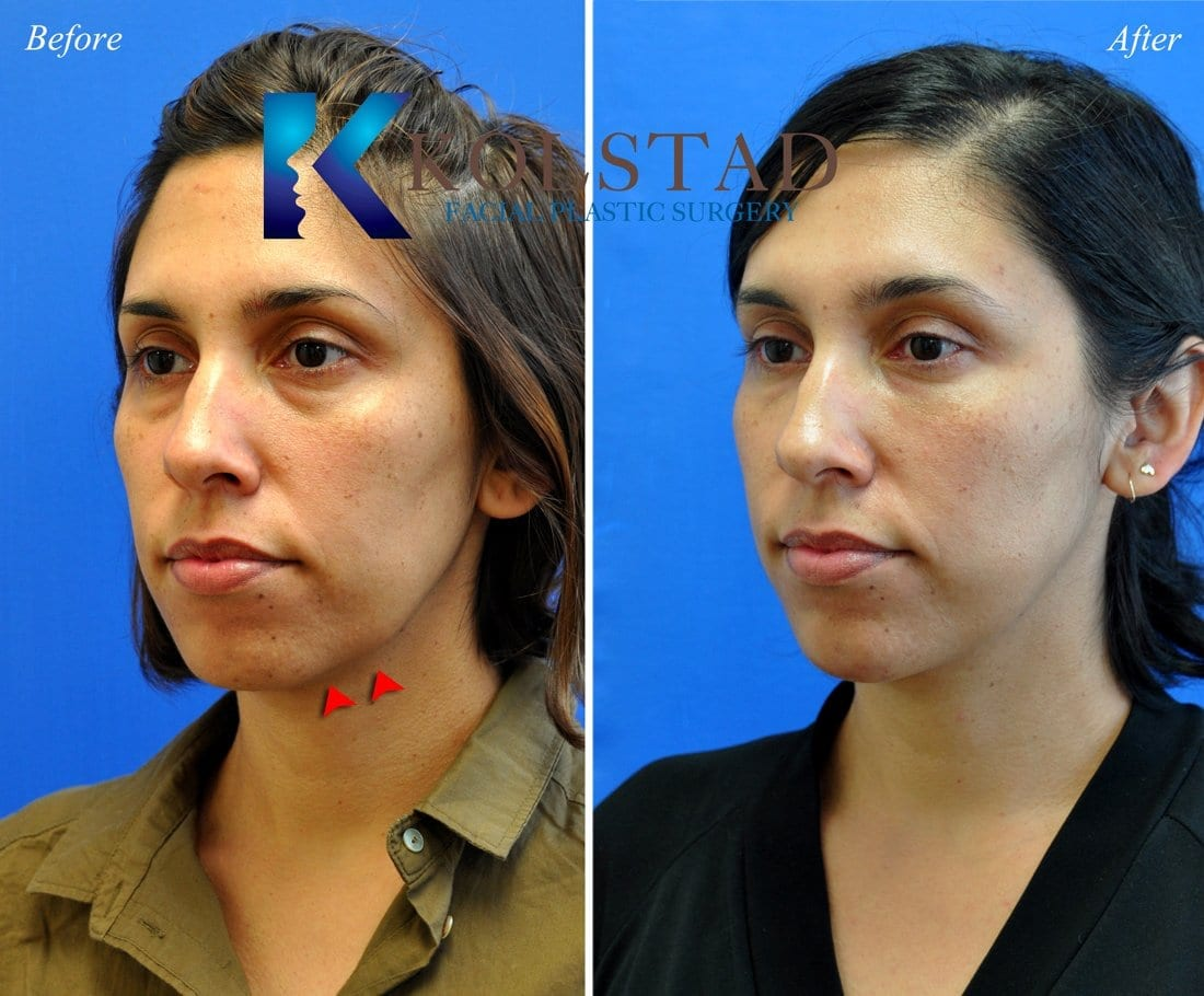 chin-augmentation-san-diego-32