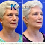 cosmetic eye surgery san diego 100 copy