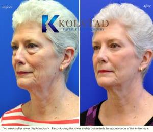 cosmetic eye surgery san diego 101 copy