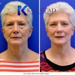 cosmetic eye surgery san diego 102 copy