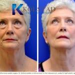 cosmetic eye surgery san diego 105 copy