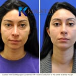 cosmetic eye surgery san diego 200a copy