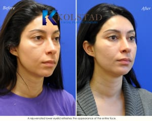 cosmetic eye surgery san diego 201 copy
