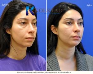 cosmetic eye surgery san diego 201 copy
