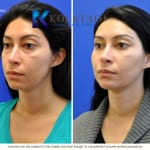 cosmetic eye surgery san diego 202 copy