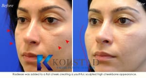 cosmetic eye surgery san diego 202a copy