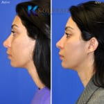 cosmetic eye surgery san diego 204 copy