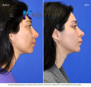 cosmetic eye surgery san diego 205 copy