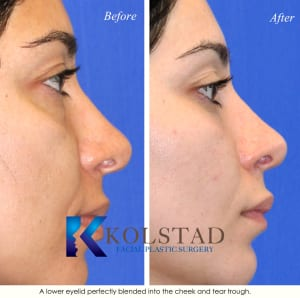 cosmetic eye surgery san diego 205a copy