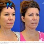 cosmetic eye surgery san diego 251 copy