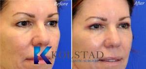 cosmetic eye surgery san diego 252 copy