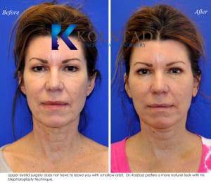 cosmetic eye surgery san diego 253 copy