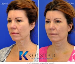 cosmetic eye surgery san diego 254 copy