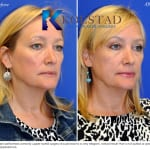 cosmetic eyelid surgery san diego 436 copy