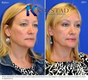 cosmetic eyelid surgery san diego 436 copy