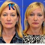 cosmetic eyelid surgery san diego 437 copy