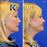 cosmetic eyelid surgery san diego 438 copy