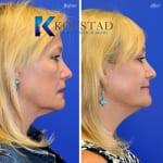 cosmetic eyelid surgery san diego 438 copy