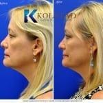 cosmetic eyelid surgery san diego 440 copy