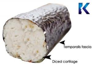 DCF graft diced cartilage fascia graft